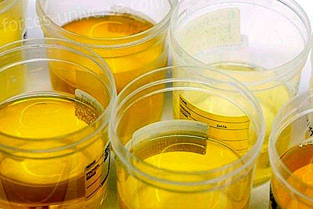 kas rasva poleb uriini kaudu jet-i treeneri kaalulangus