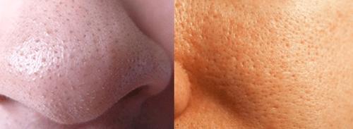 eemaldage rasva naha all