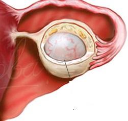 dermaidi munasarjade tsustide eemaldamise ja kaalulangus