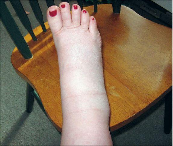 paisunud jalad ja kaalulangus 6 kuu kaalulangus eesmark